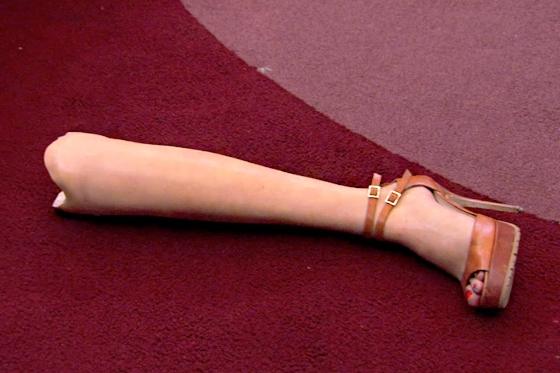Aviva's Leg